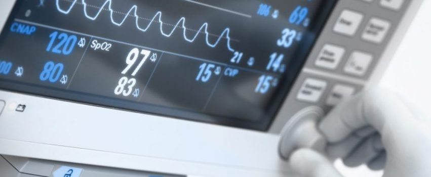 medical electronics. Monitor with ECG curves